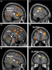 Een fMRI scan van een HSP